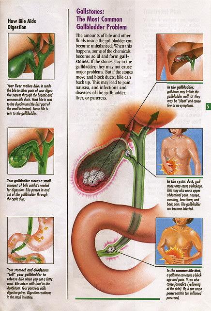 liver-gallbladder-flush-cleanse